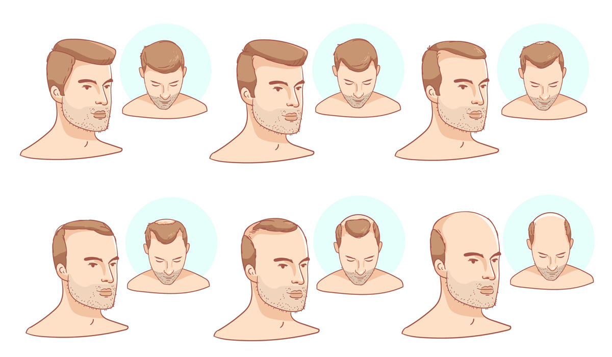 Image of different types of male hair loss