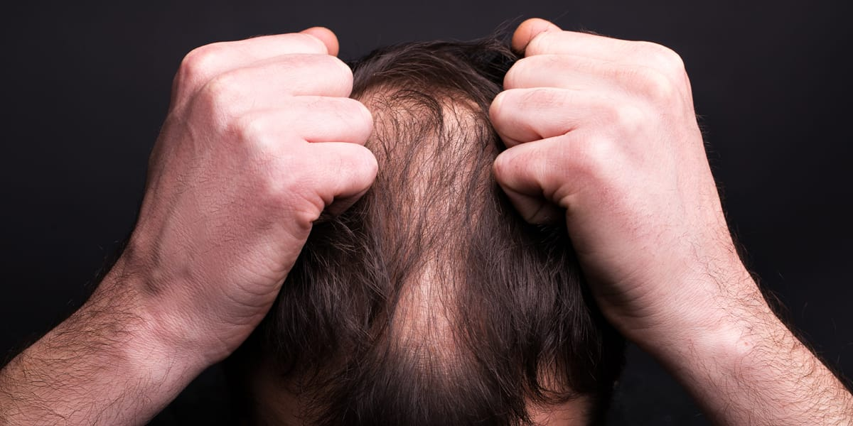 Man suffering from hair loss as a result of stress