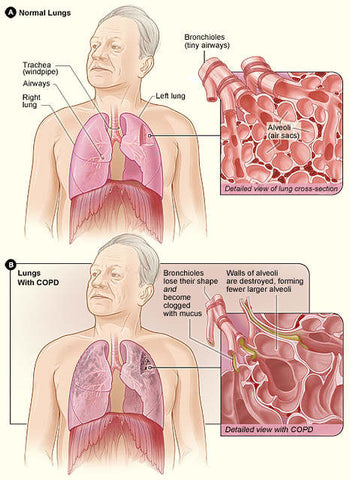 COPD image