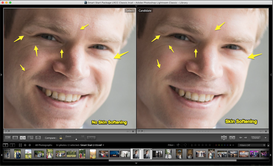 before and after lightroom skin smoothing