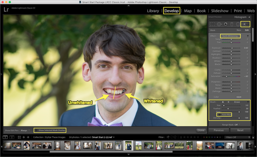 whiten teeth lightroom before after