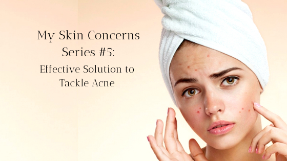 My Skin Concerns Series #5: Effective Solution to Tackle Acne