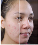 Image of Teen Before & After Acne Wipeout
