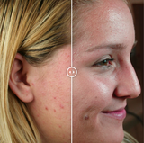Image 3 Teenage Acne Before & After Treatment
