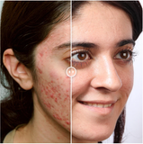 Image 2 of Teen Before & After Acne Wipeout