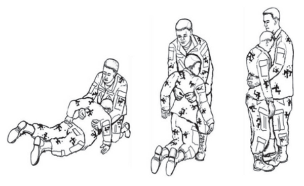 Figure 1-3. Fireman's carry (alternate method for lifting the patient to a standing position)