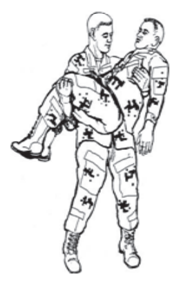 Figure 1-5. Arms carry