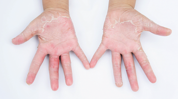 Healthy Skin Protection - Contact Dermatitis