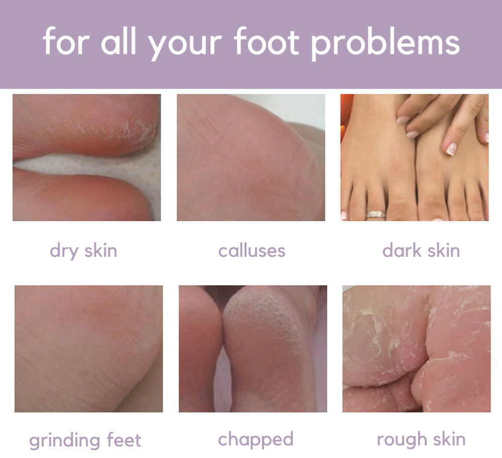 Soft And Smooth Gentle Peeling Foot Mask