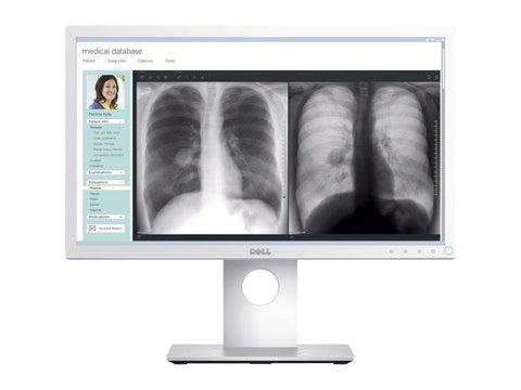Dell 22 Medical Review Monitor MR2217