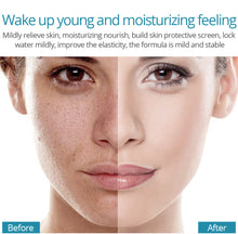 Load image into Gallery viewer, Moisturizing Hyaluronic Acid Facial Serum