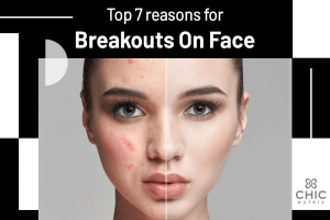 Top 7 reason for breakouts on face