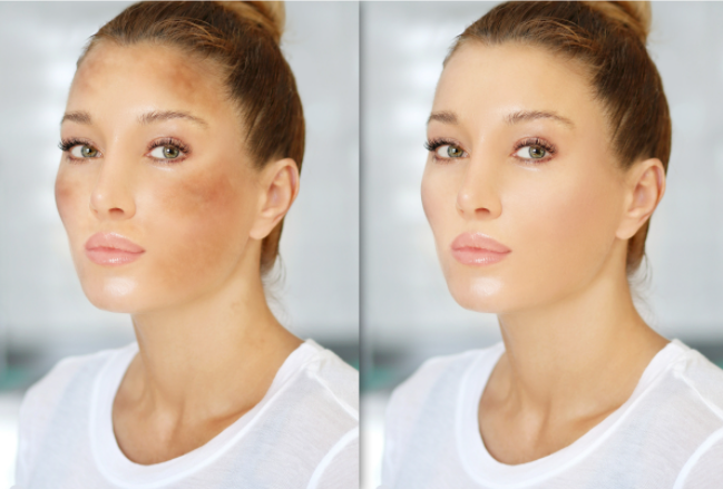 Melasma before and after cream