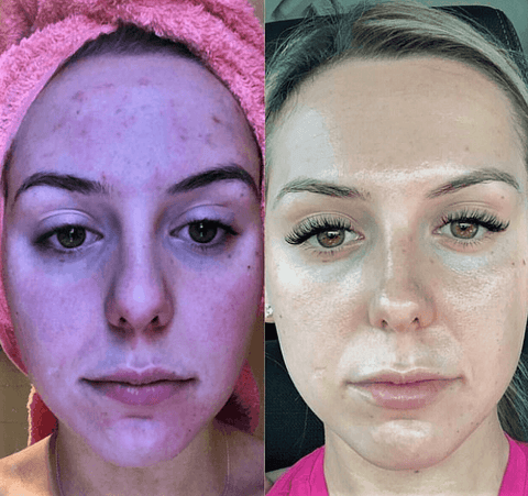 A before and after of a model who used the LED Face Mask Therapy showing better and improved results.