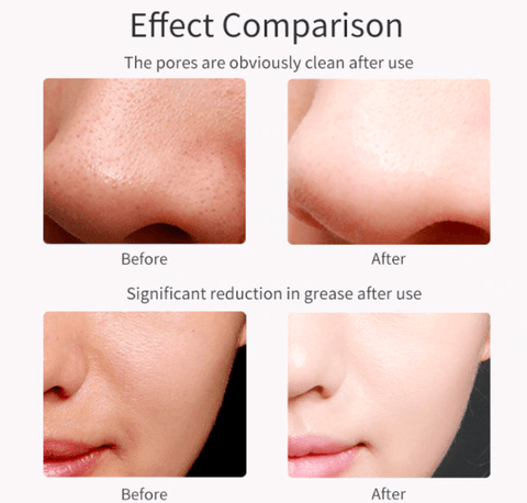 before and after comparison of using Ultrasonic Facial Skin Scrubber