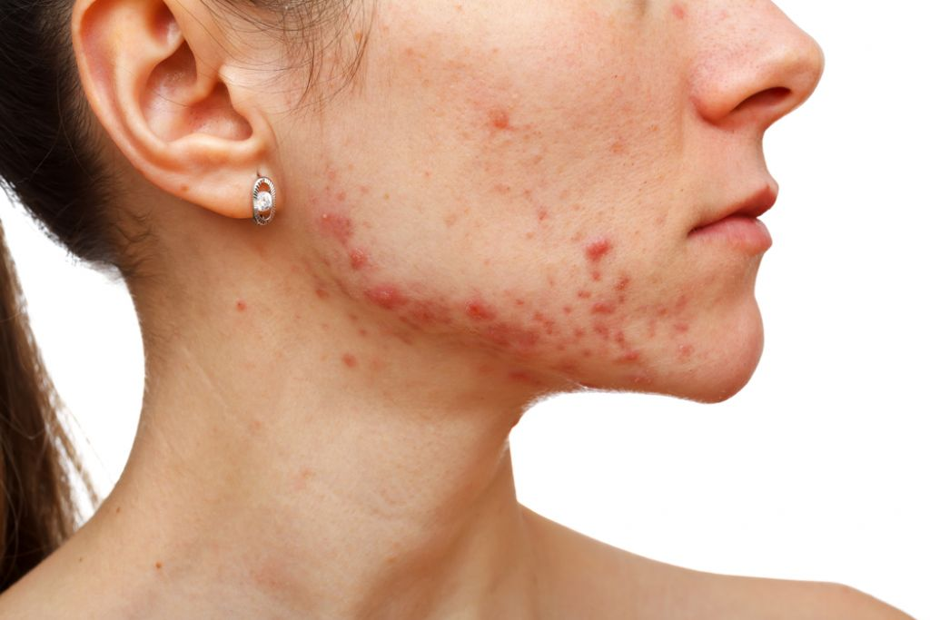 Could Your Acne Actually Be Melanoma?