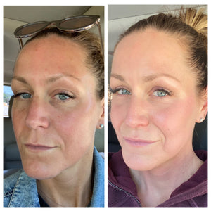 Preveda Health & Esthetics 3 Month Progress Report