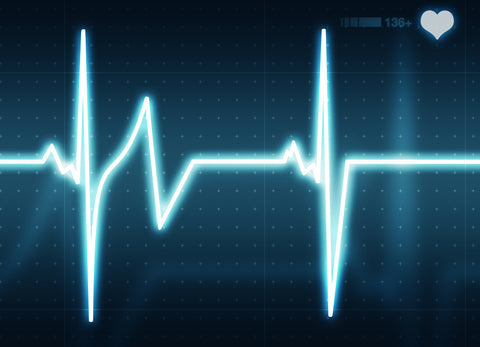 What is Heart Rate Variability