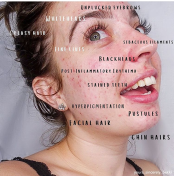 """Bekki turns her head to the right, and is looking behind her as she smiles. This photo labels things on her face that are shunned by society like """"pustules, chin hairs, and hyperpigmentation."""""""