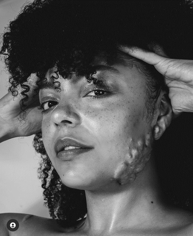 This picture is in black and white. Bianca holds her full hair up to reveal her beauty and keloid scars. Her face holds no trace of shame whatsoever, and she is making eye contact with us..