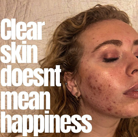 Isabella closes her eyes, and looks relaxed. The picture reads: clear skin doesn't mean happiness.