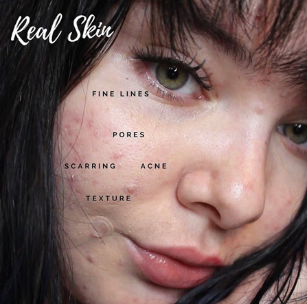 Theresa shows a close up image of her face which labels aspects of real skin like pimples, pores, and scars.