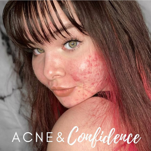 Thereasa has brown hair with red tips, and she powerfully glances over her shoulder with confidence and a smile. The picture reads: acne and confidence.