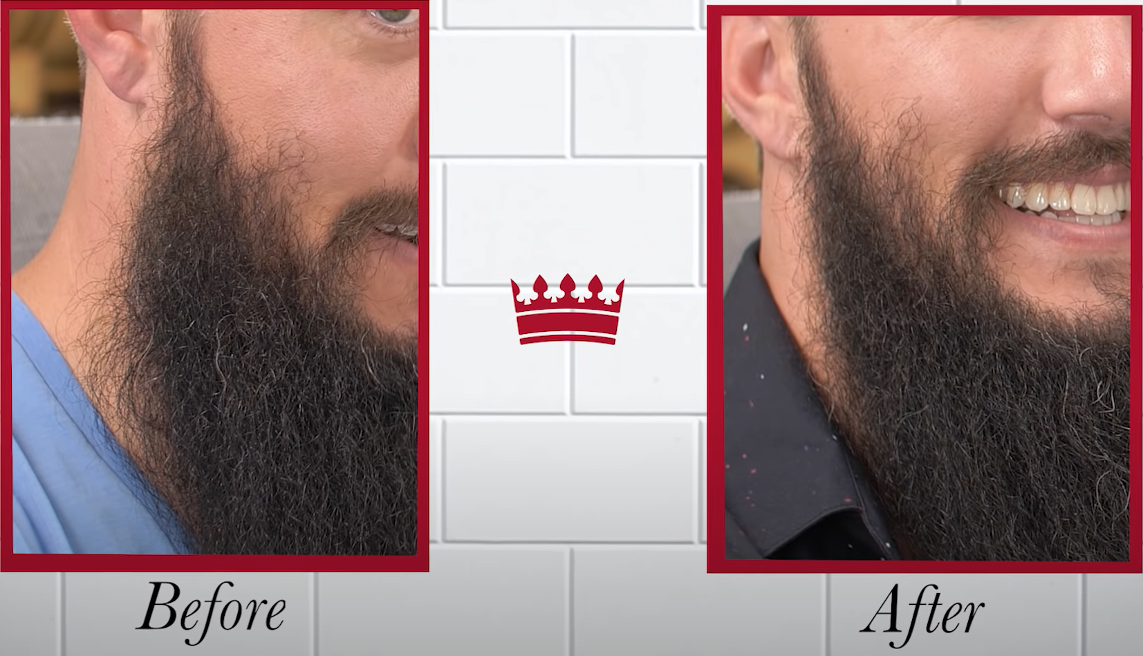 Patchy beard before and after sideburn close up