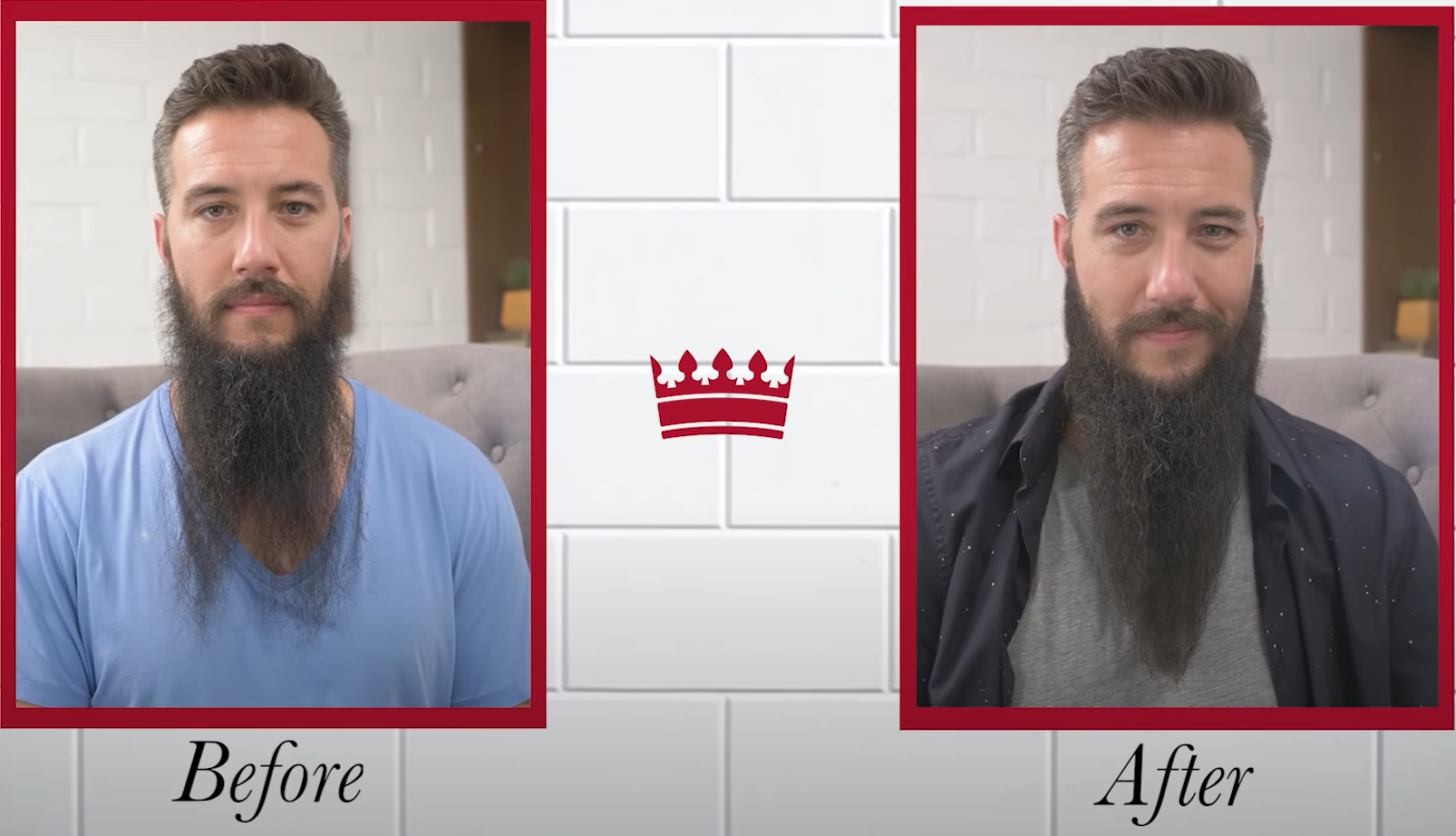 Patchy beard before and after comparison
