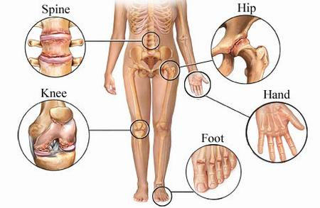 joint-pains-in-the-body