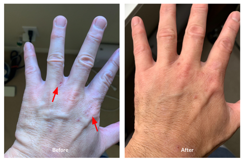 eczema before/after Soteri #3