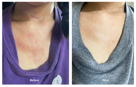 Eczema before/after Soteri