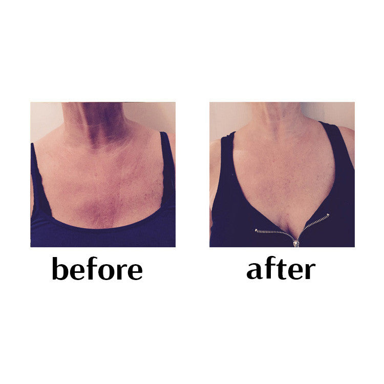Decolletage wrinkle prevention