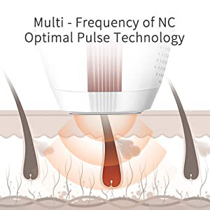 Multi - Frequency of NC Optimal Pulse Technology