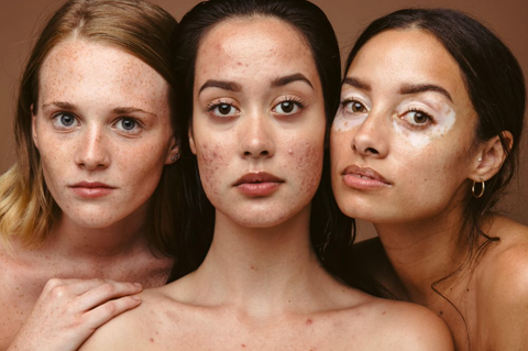 Three women with beautiful skin and traditional blemmishes