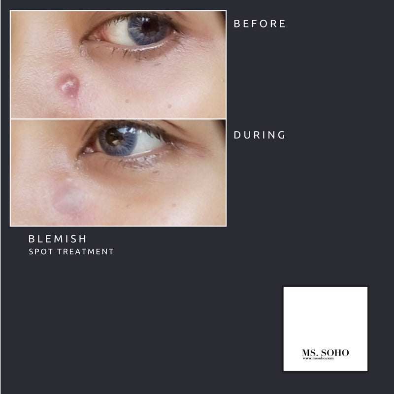 BLEMISH: SPOT TREATMENT