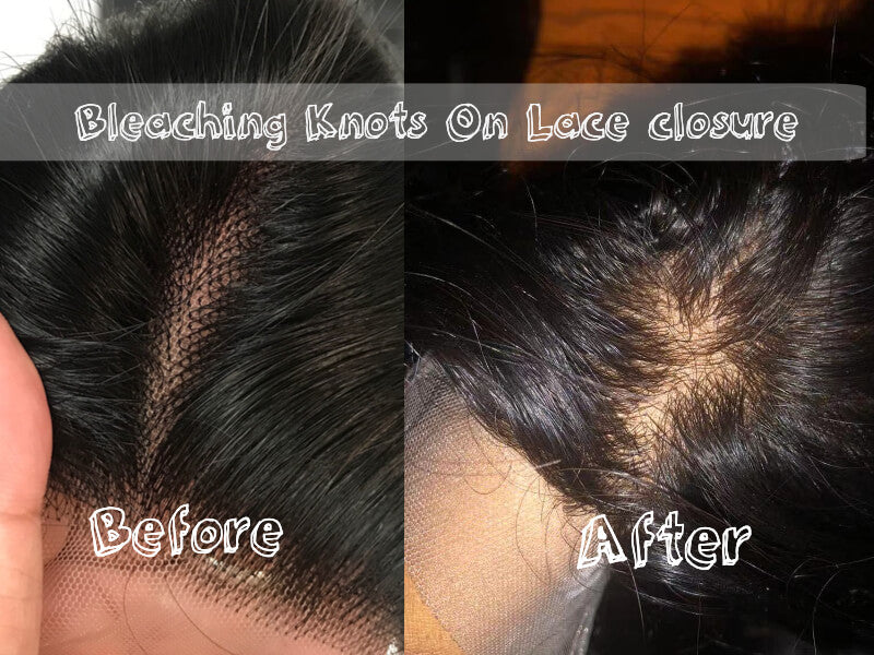 bleaching knots on lace closure before and after