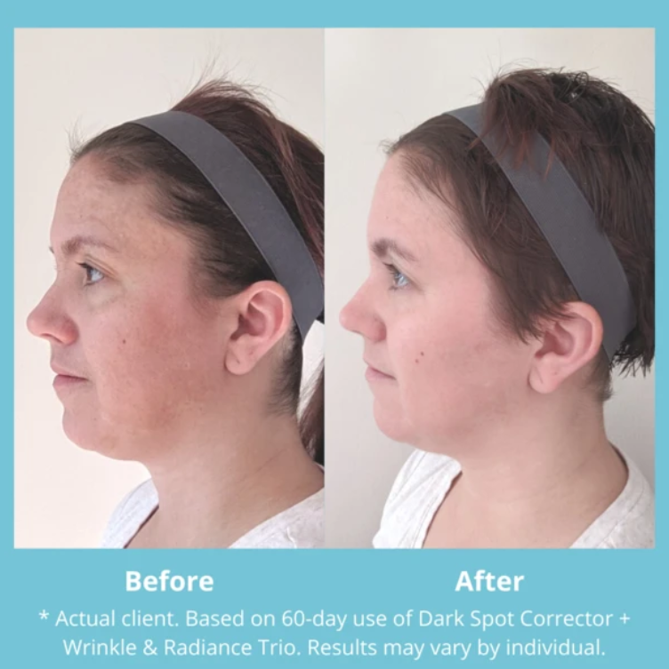 MD Complete Dark Spot Corrector (No Hydroquinone) from MyExceptionalSkinCare.com Before and After Side