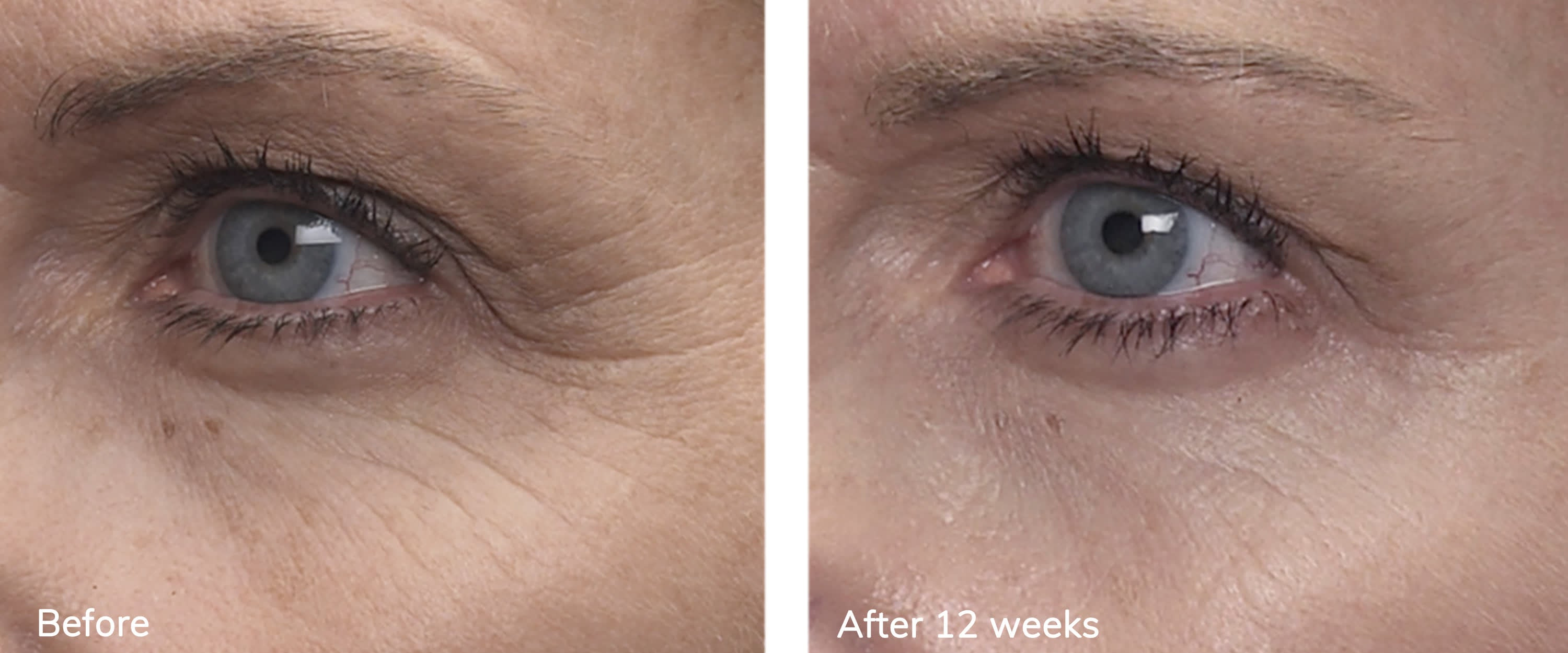 MD Complete Total Eye Treatment from MyExceptionalSkinCare.com Before and After