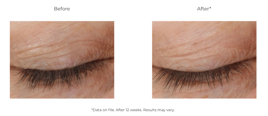 Revision Skincare DEJ Eye Cream from MyExceptionalSkinCare.com Before and After