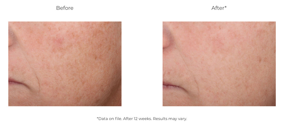 Revision Skincare Intellishade Original Daily Moisturizer with Sunscreen from MyExceptionalSkinCare.com Before and After