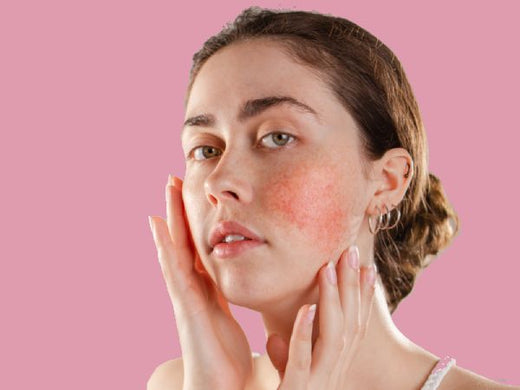 How to Relieve Rosacea Naturally