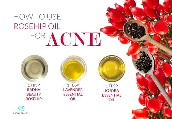 6 Ways To Use Rosehip Oil Recipes Amp Applications Radha Beauty