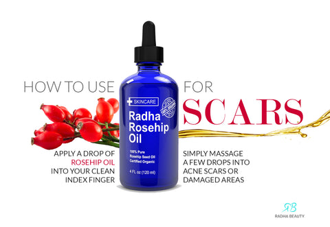 How to use rosehip oil for scars