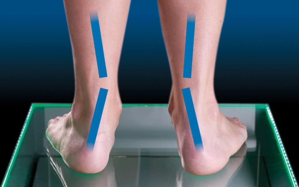 over supination pronation