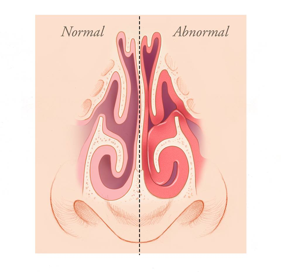 Inflamed nose