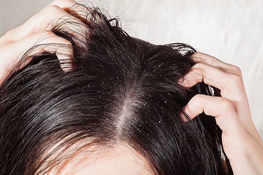 Hair Care 101: Dry Scalp Treatments