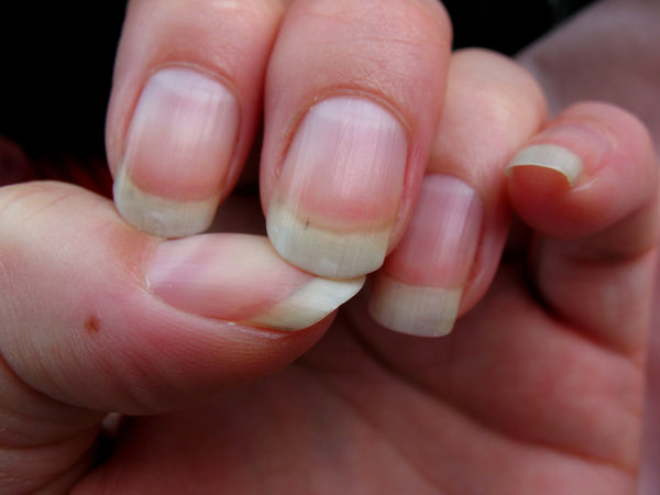 Biotin Benefits Nails