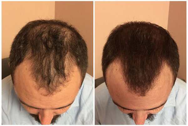 Image of the scalp with before  after