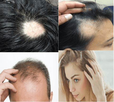 You don't have to suffer with baldness, patches, thinning or receding hair any longer!